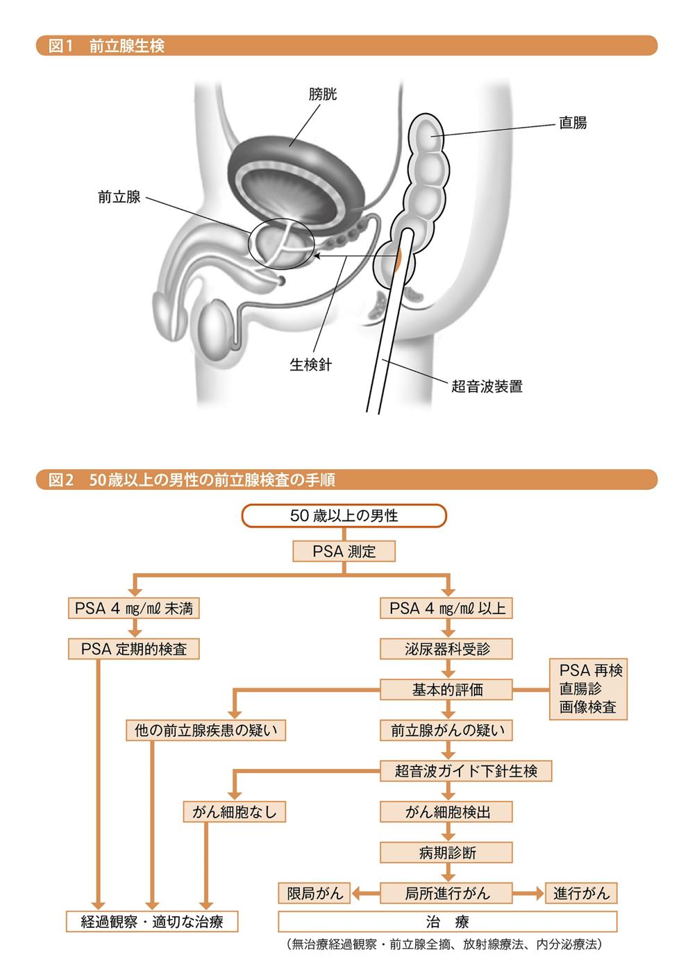 肥大 予防 前立腺